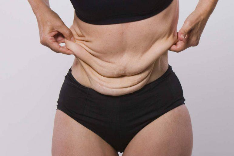 Tratamiento Quirúrgico Post Cirugía Bariátrica