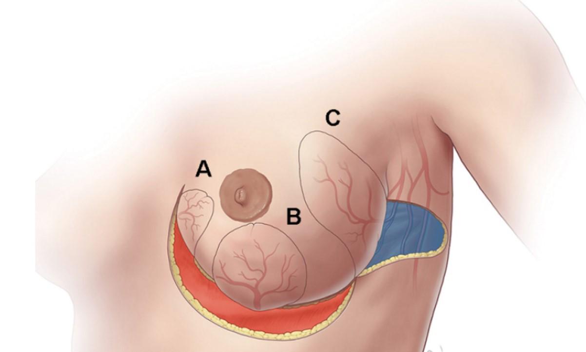 ¿Qué es la reconstrucción mamaria y cuándo se recomienda?
