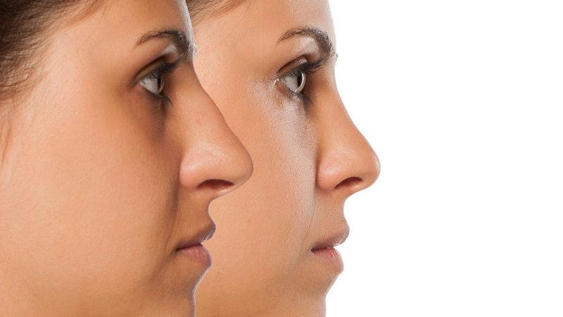 Rinoplastia de revisión: ¿qué hay que saber antes de someterse a otra cirugía de la nariz?