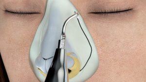 Lee más sobre el artículo Rinoplastia ultrasónica, la innovadora técnica que multiplicó los retoques de nariz