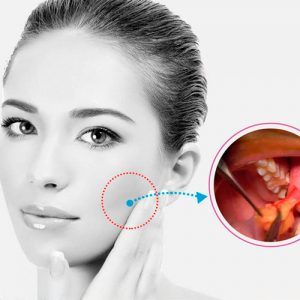 Los tratamientos de medicina estética que corrigen las áreas más críticas del cuerpo