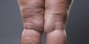 """""""No estoy gorda: sufro de lipedema"""""""