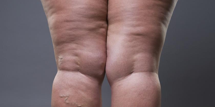 """Lee más sobre el artículo """"No estoy gorda: sufro de lipedema"""""""